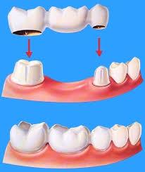 Phục hình tại vị trí răng bị mất