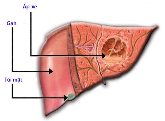 Bệnh áp xe gan do amip