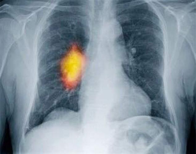 Tại sao không hút thuốc lá vẫn bị ung thư phổi?