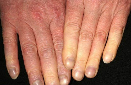 Tìm hiểu về bệnh cước chân tay và cách phòng tránh bệnh