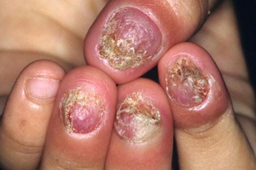 Bệnh nấm móng tay và cách chữa trị bệnh