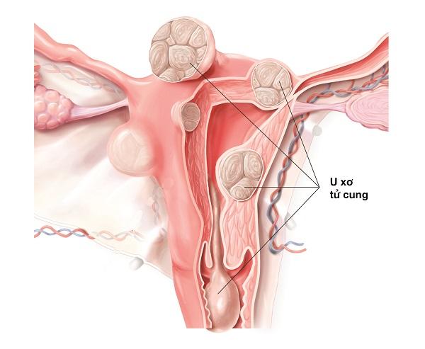U xơ cổ tử cung là bệnh gì? Triệu chứng và cách điều trị
