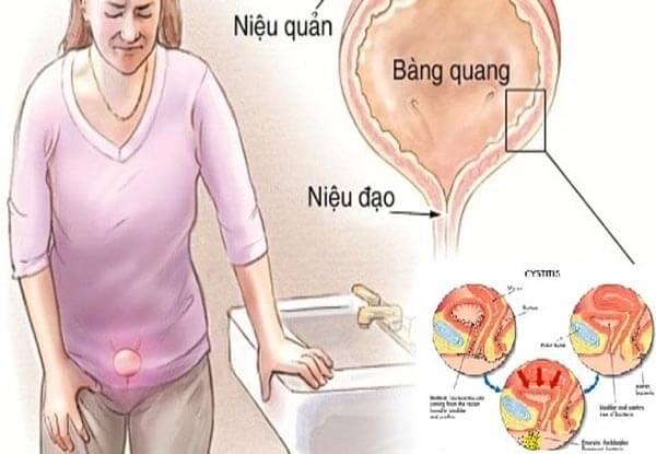 Đặt vòng được biết đến là phương pháp tránh thai mà không ít chị em lựa chọn khi chưa chuẩn bị sẵn