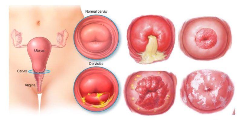 Hình ảnh viêm lộ tuyến cổ tử cung ở nữ