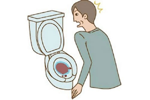 Tình trạng tiểu buốt ra máu đau bụng dưới có nguy hiểm không?